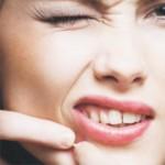 Акне. Лечение акне в домашних условиях
